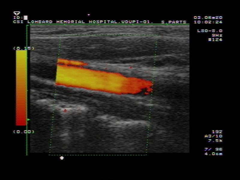Doppler ultrasound pictures